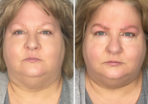 BROW BEFORE & AFTER FABULASHAZ