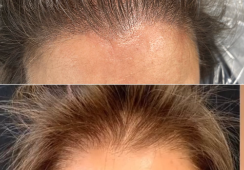 SCALP MICRO-PIGMENTATION BEFORE & AFTER